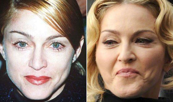 Мадонна в молодости и сейчас