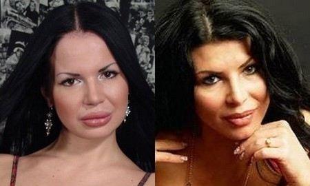 Ирэн Феррари до и после пластики