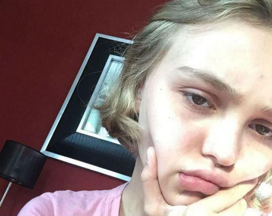 Лили-Роуз Депп без макияжа