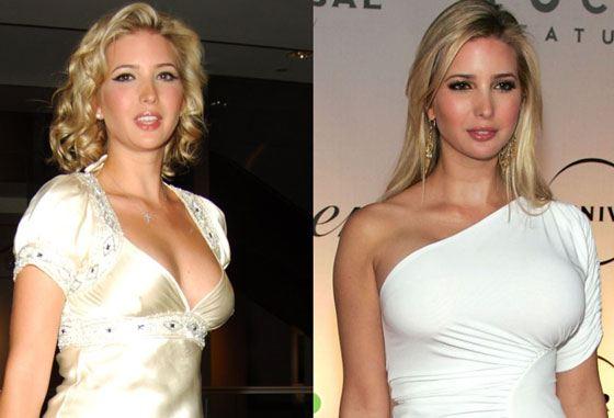 Иванка Трамп до и после пластики по увеличению груди