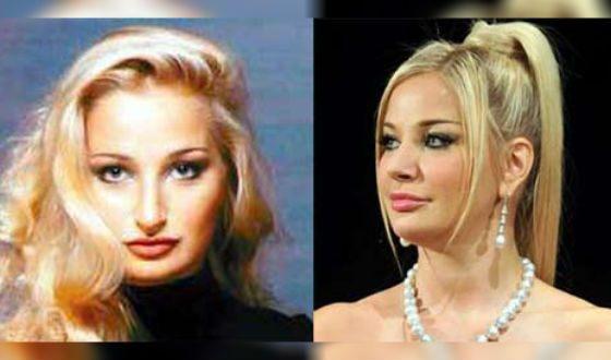 Мария Максакова до и после пластики