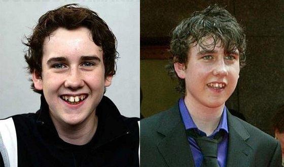 В детстве у МэттьюЛьюиса были проблемы с зубами