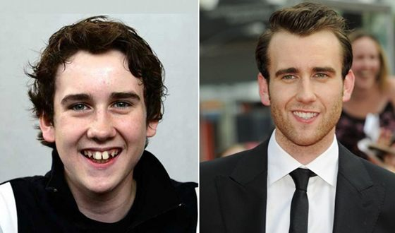 МэттьюЛьюис до и после коррекции зубов