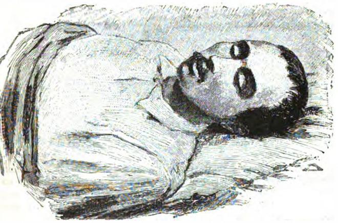 Михаил Лермонтов на смертном одре