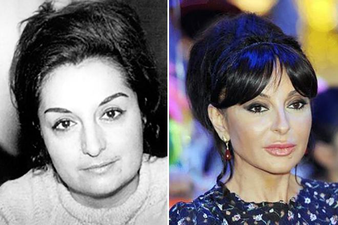 Мехрибан Алиева до и после пластики